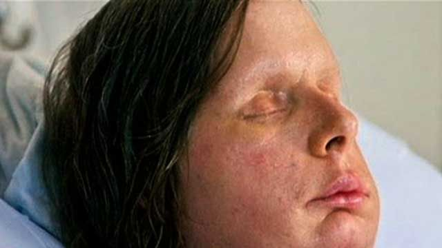Chimp Attack Victim Gets New Face